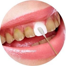 牙齿美白非速效去黄牙烟烟渍